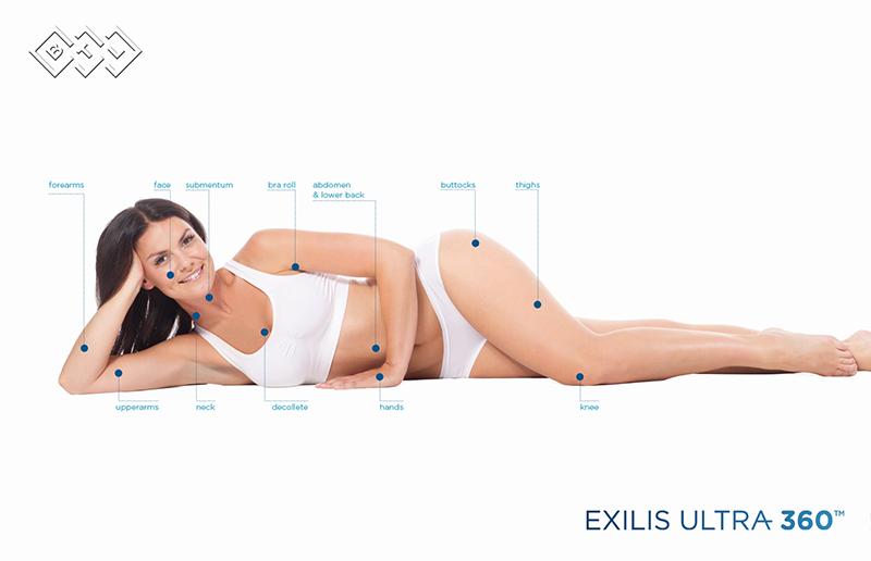 Exilis presentation