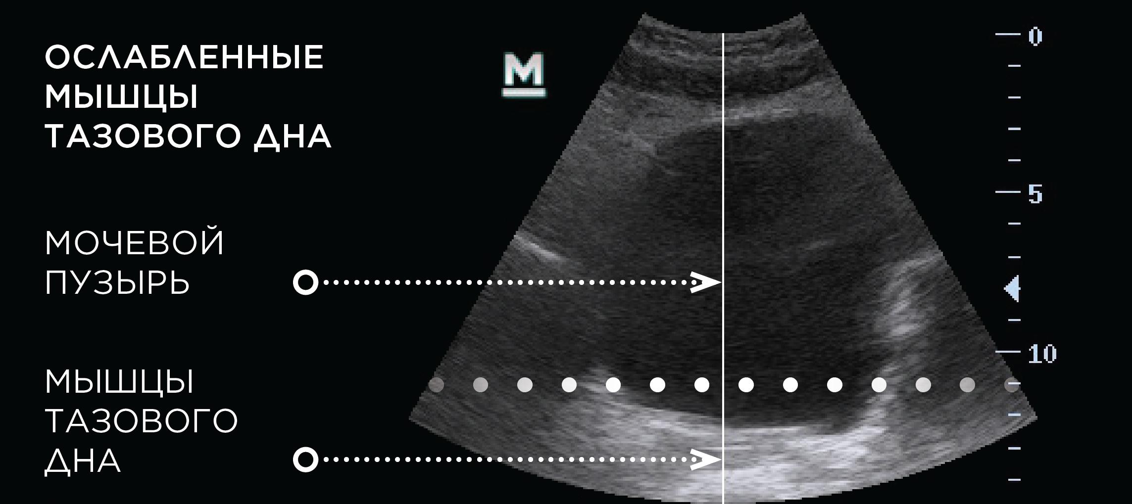 BTL_Emsella_PIC_Ultrasound-web_RU100_before_(1)