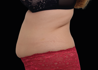 Emsculpt_neo_PIC_025-before-abdomen-female-BTL-Aesthetics__412x296px