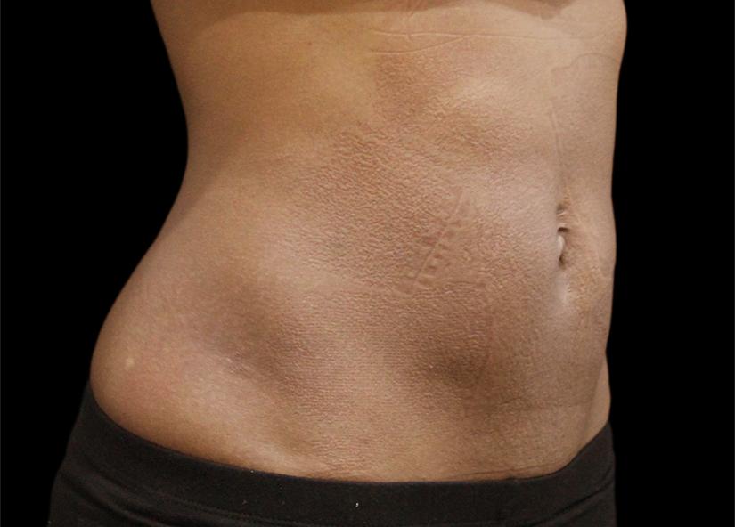 Abdomen_BTL_Vanquish_ME_PIC_018-After-abdomen-female-Suneel-Chilukuri-MD-2TX_825x592px