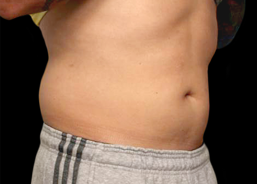 Abdomen_BTL_Vanquish_ME_PIC_010-After-abdomen-male-Frank-Agullo-MD-4TX_825x592px