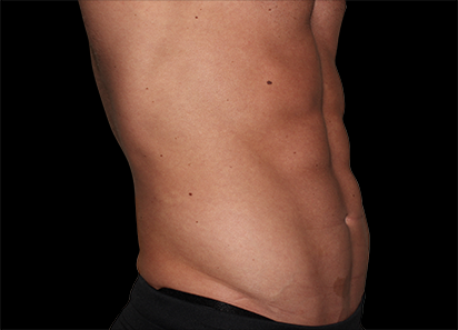 Emsculpt_PIC_036-After-abdomen-male-Edward-M-Zimmerman-MD-4TX_412x296px