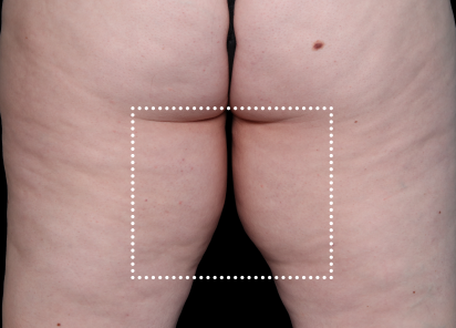 Emsculpt_Neo_PIC_062-before-inner_thighs-female-Diane-Duncan-MD_412x296px