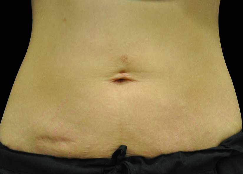 Abdomen_BTL_Exilis_Ultra_PIC_012-After-abdomen-female-Jason-Lupton-MD-6TX_825x592px