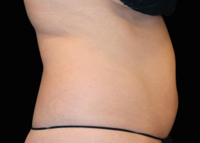 Emsculpt_neo_PIC_040-before-abdomen-female-Julene-Samuels-MD__412x296px