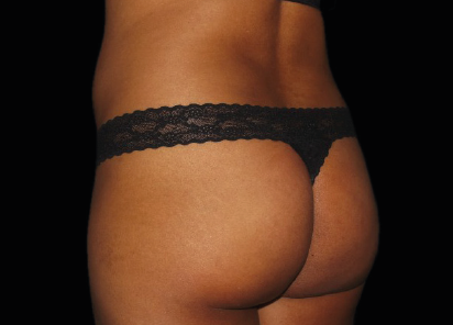 Emsculpt_PIC_036-Before-buttock-female-Chris-Bailey-Ovation-Med-Spa__412x296px