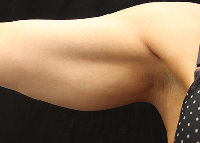 Exilis_Ultra_PIC_019-After-arms-female-Suneel-Chilukuri-MD-4TX_412x296px