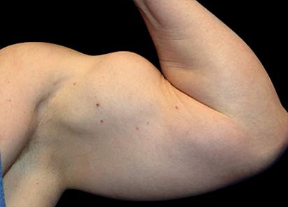 Emsculpt_PIC_074-after-arms-male-Reminder-Saluja-3W-4TX_412x296