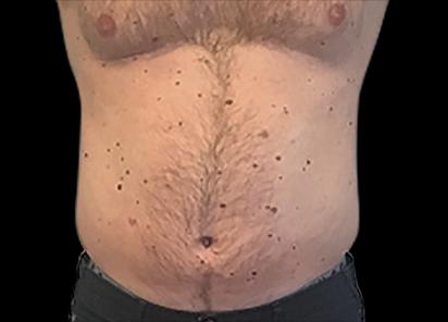 Emsculpt_PIC_007-Before-abdomen-male-Anita-Sturnham-MD__412x296px