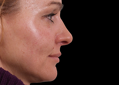 Exilis_Ultra_360_PIC_109-After-face-neck-female-BTL-Aesthetics-4TX_412x296px
