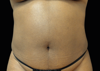 Emsculpt_neo_PIC_005-before-abdomen-female-David-Kent-MD__412x296px