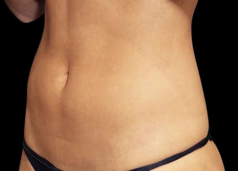 Abdomen_BTL_Emsculpt_PIC_011-After-female-Suneel-Chilukuri-MD-4TX_825x592px