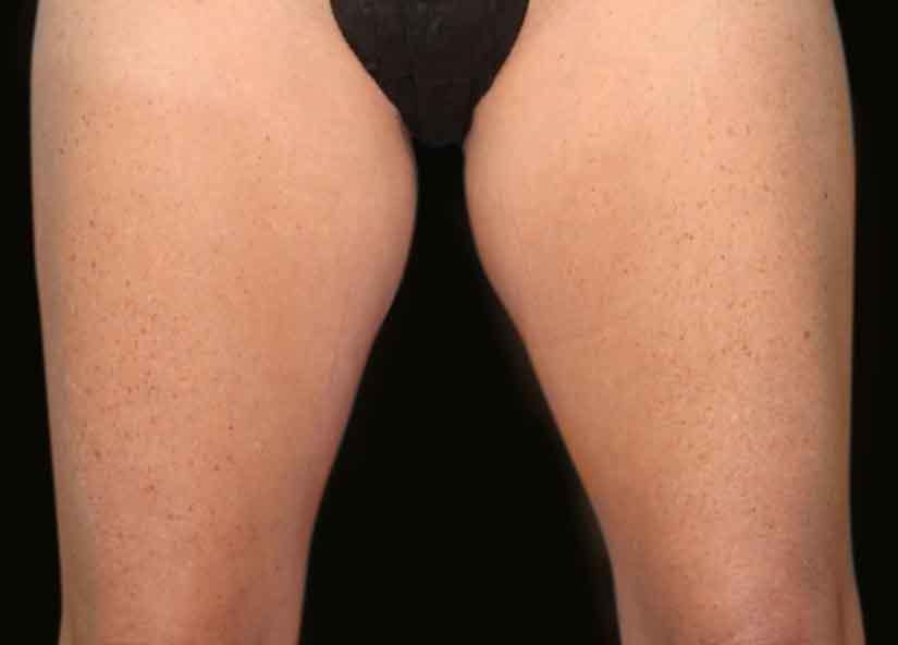 Legs_BTL_Vanquish_Flex_PIC_012-After-legs-female-McDaniel-4TX_825x592px