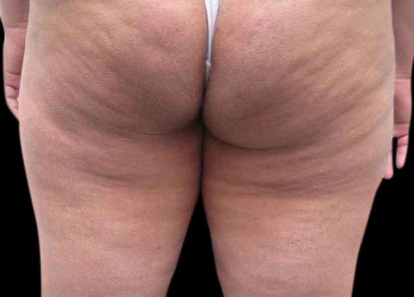 Buttocks_BTL-X-Wave_PIC_004-Before-buttocks-female-btlaesthetics_825x592px