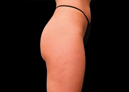 Emsculpt_PIC_016-Before-buttock-female-Brian-Kinney-MD__412x296px