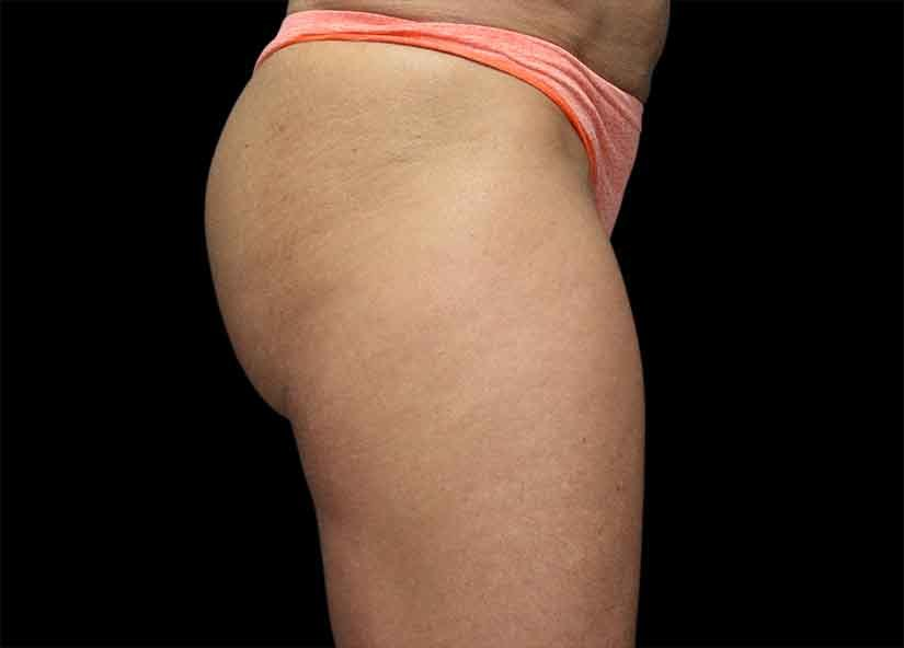 Buttocks_Emsculpt_PIC_045-after-female-Alain-michon-md-ottawa-on-canada-4TX-825x592px