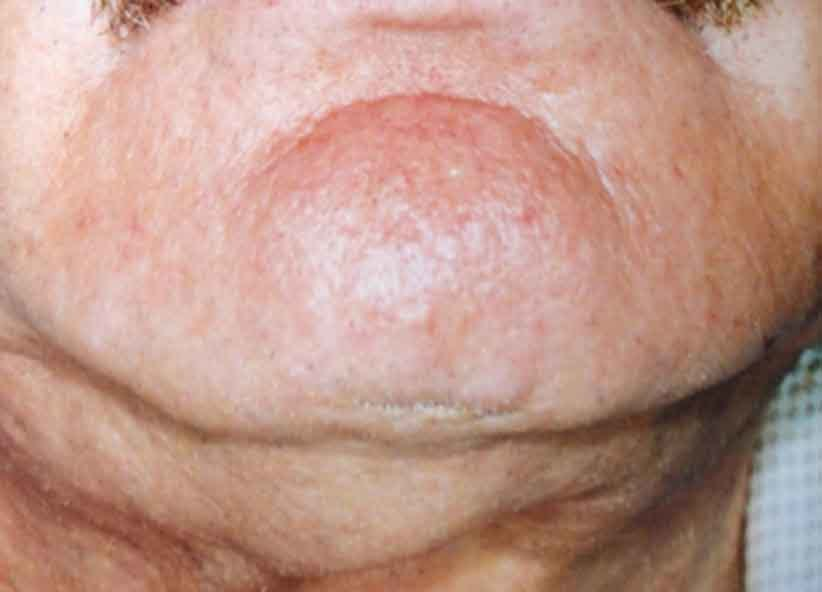 Exilis Before Picture Neck