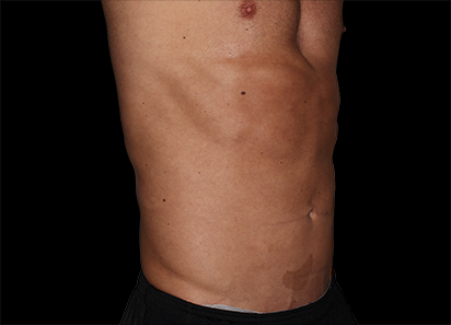 Emsculpt_PIC_036-Before-abdomen-male-Edward-M-Zimmerman-MD_412x296px