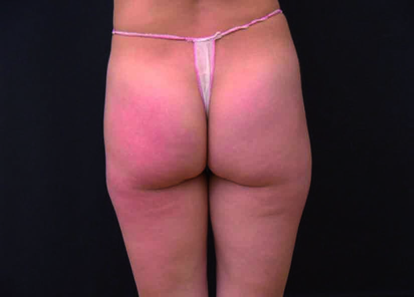 Buttocks_X-Wave_PIC_002-After-buttocks-female-btlaesthetics-4TX_825x592px