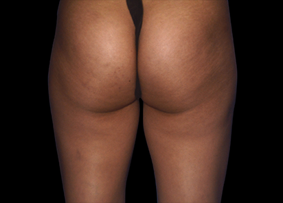 Emtone_PIC_006-After-buttock-female-Marianno-Busso-MD-4TX_412x296