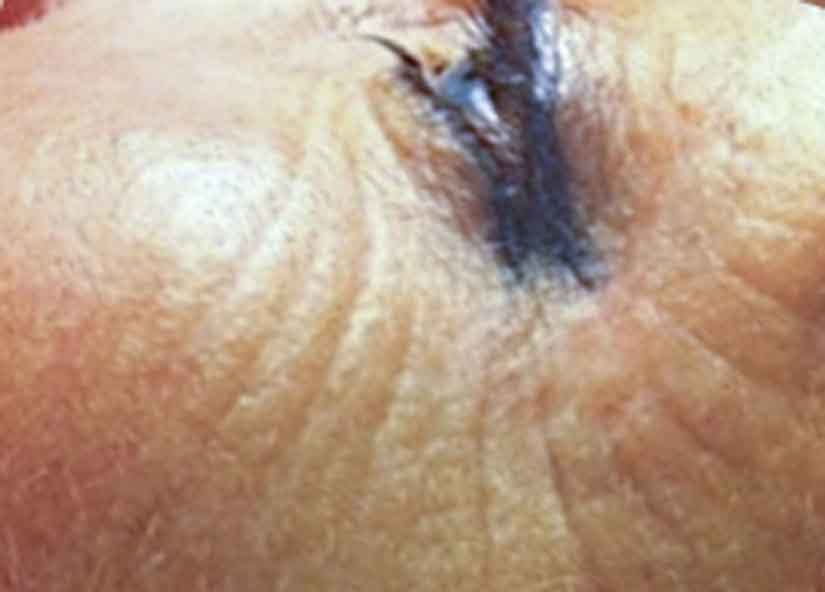 Exilis After Picture Face Female