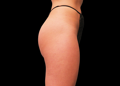 Emsculpt_PIC_016-After-buttock-female-Brian-Kinney-MD-4TX__412x296px