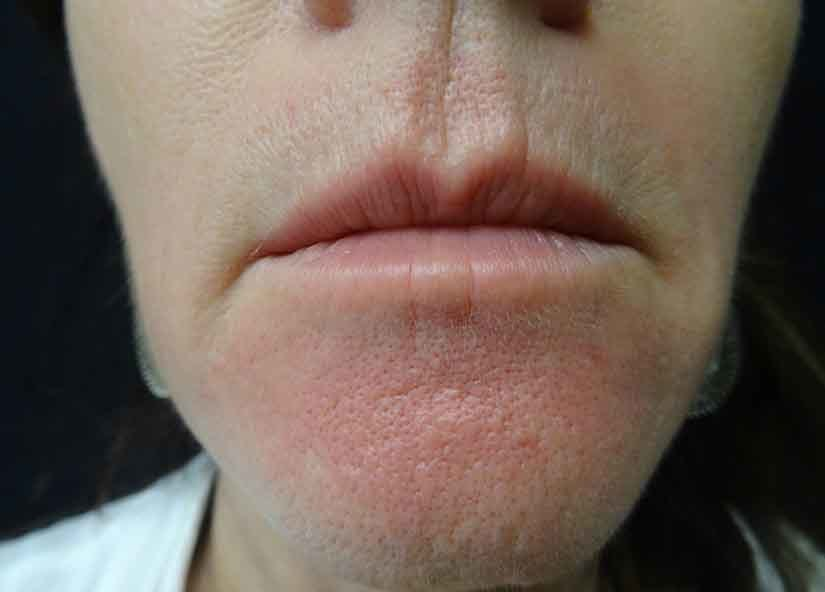 Exilis After Picture Lips Female