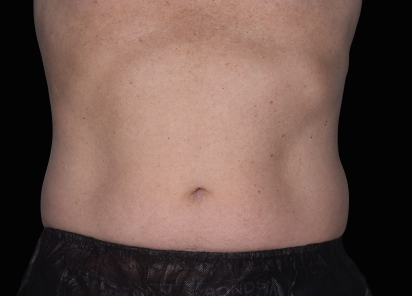 Emsculpt_neo_PIC_043-after-abdomen-male-David-Kent-MD-6M__412x296px