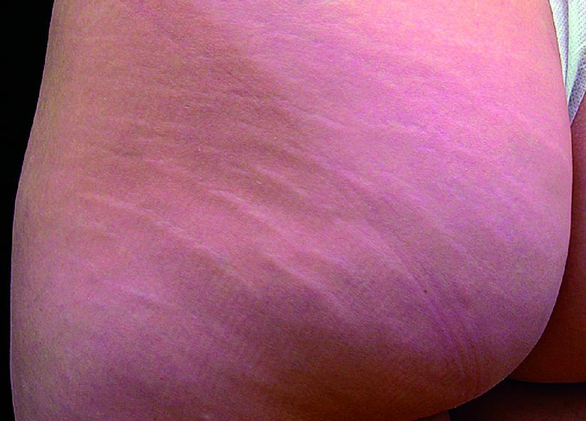 Buttocks_BTL-X-Wave_PIC_003-Before-buttocks-female-btlaesthetics_825x592px