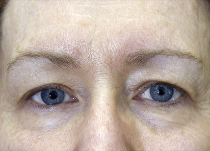 Exilis_PIC_261-After-eyes-female-Hartsough-2TX_412x296px