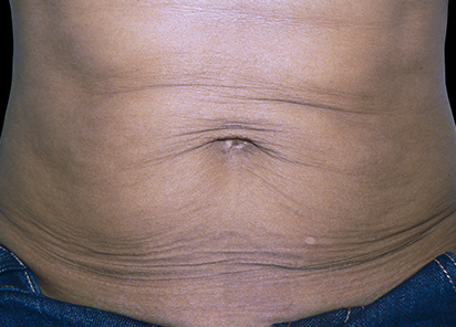 Exilis_PIC_105-Before-abdomen-female-Jeannie-B.-Downie-MD_412x296px