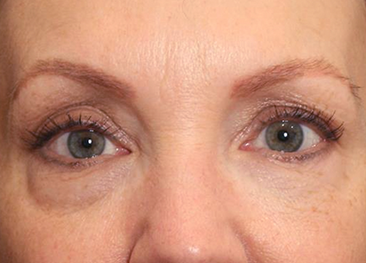 Exilis_Ultra_360_PIC_103-Before-eyes-female-Suneel-Chilukuri-MD_412x296px
