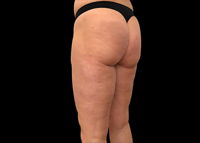 Emtone_PIC_027-After-buttock-female-Giulia-Bianchi-3TX_412x296