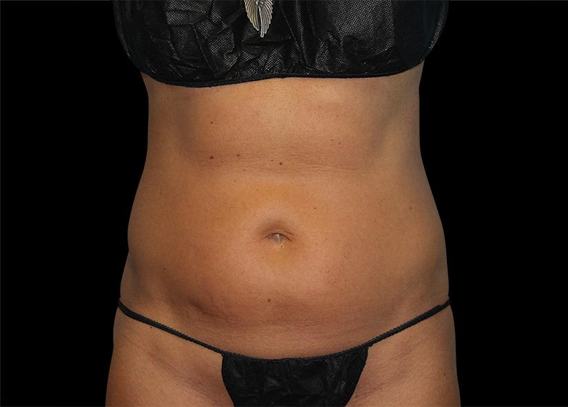 Abdomen_BTL_Vanquish_ME_PIC-301-Before-abdomen-female-Amir-Moradi-MD-825x592px