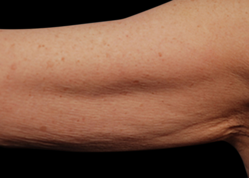 Arms_Before-2_825x592_Exilis