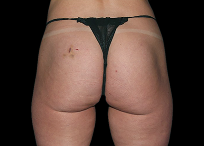 Emsculpt_PIC_041-After-buttock-female-Chris-Bailey-Ovation-Med-Spa-4TX__412x296px