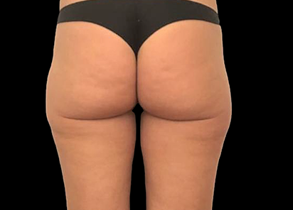 Emtone_PIC_028-After-buttock-female-Giulia-Bianchi-3TX_412x296
