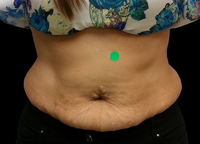 BTL_Cellutone_PIC_012-Before-abdomen-female-Suneel-Chilukuri-MD_412x296