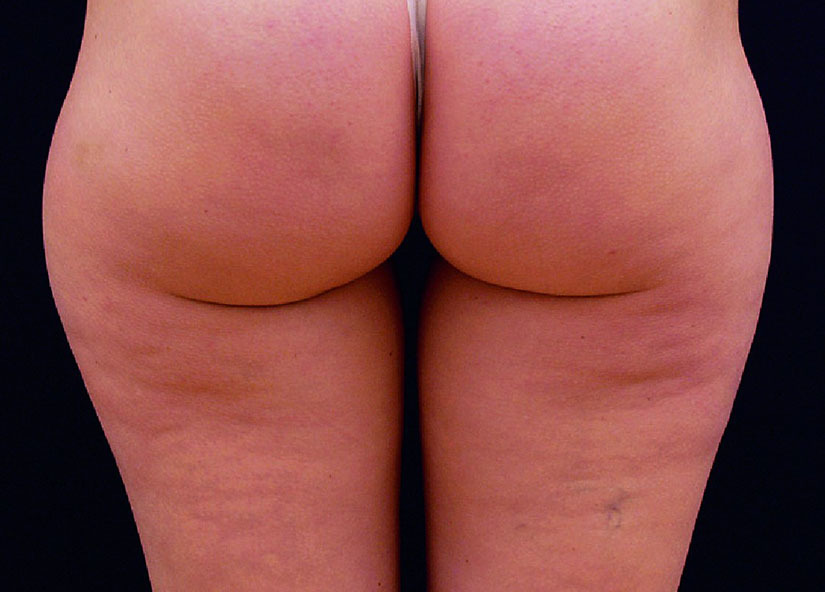 Buttocks_X-Wave_PIC_006-After-buttocks-female-btlaesthetics-4TX_825x592px