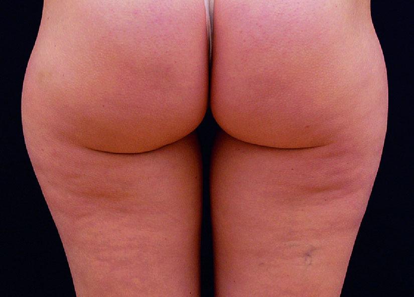Buttocks_X-Wave_PIC_006-After-buttocks-female-btlaesthetics-4TX_825x592px