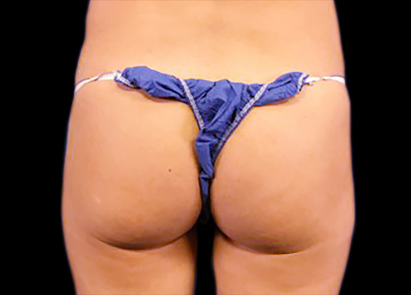 Emsculpt_PIC_089-before-buttock-female-mark-deuber-md_825x592px