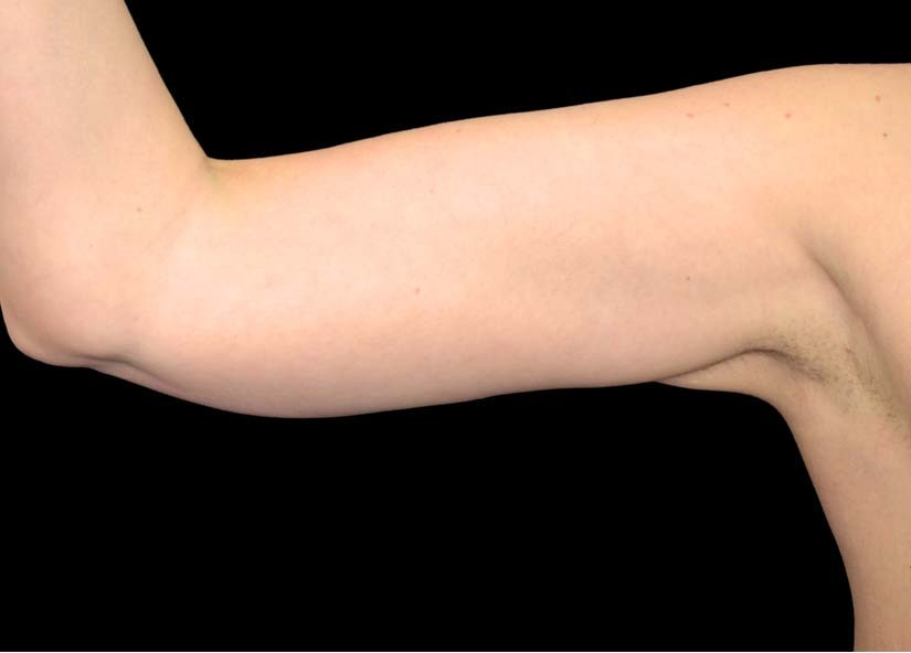 Arms_Exilis_Ultra_PIC_003-After-arms-female-4TX1