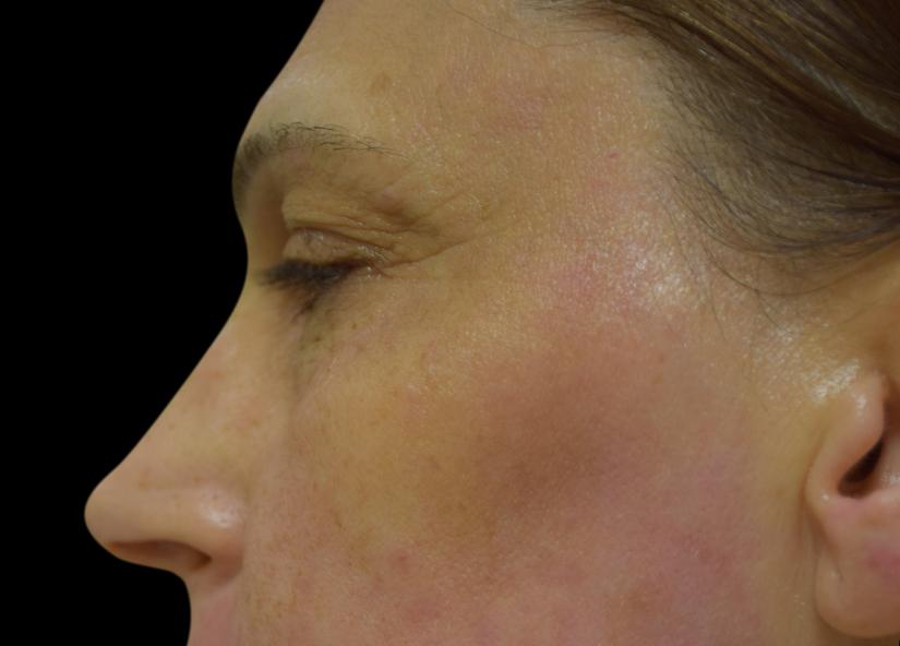 Head_BTL_Exilis_Ultra_PIC_001-After-Forhead-Preorbital-wrinkles-BTL-Aesthetics-4TX_825x592px