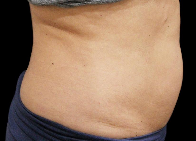 Abdomen_BTL_Vanquish_ME_PIC_026-After-abdomen-female-Suneel-Chilukuri-MD-2TX_825x592px