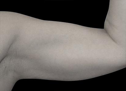 Emsculpt_PIC_076-Before-arms-female-Reminder-Saluja-MD__412x296px
