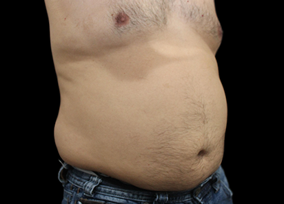 BTL_Vanquish_ME_PIC_090-Before-abdomen-male-Suneel-Chilukuri-MD_412x296