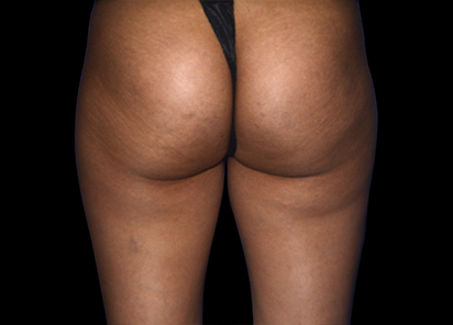Emtone_PIC_006-Before-buttock-female-Marianno-Busso-MD_412x296