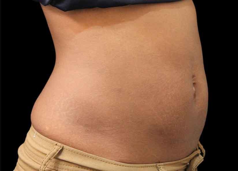 Abdomen_BTL_Vanquish_ME_PIC_018-Before-abdomen-female-Suneel-Chilukuri-MD_825x592px