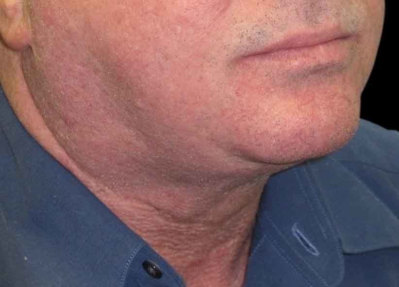 Exilis After Picture Neck Male