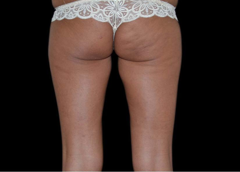 Buttocks_Exilis_Ultra_PIC_004-Before-buttocks-female1